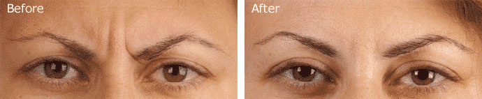BOTOX® Before and After Results - Patient 1