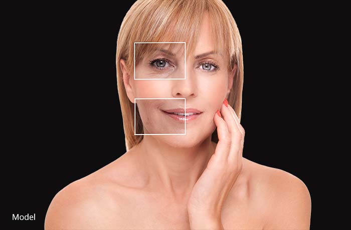 Woman's skin analysis