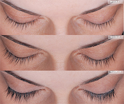 Before and After Results with Latisse® for thinning lashes