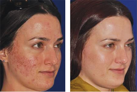 before and after of laser treatment