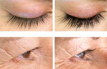 Alphaeon® beauty eyelash serum results