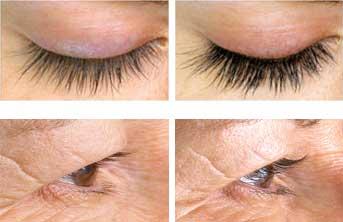 Alphaeon® beauty eyelash serum results