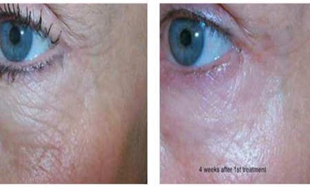 Before and after Laser treatment - 4 weeks after 1st treatment