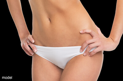 Tummy tuck model.